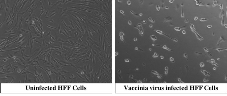 Comparison uninfected and infected cells